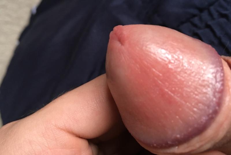 Irritation of foreskin under glans penis