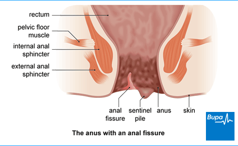 Had anal blood from anus